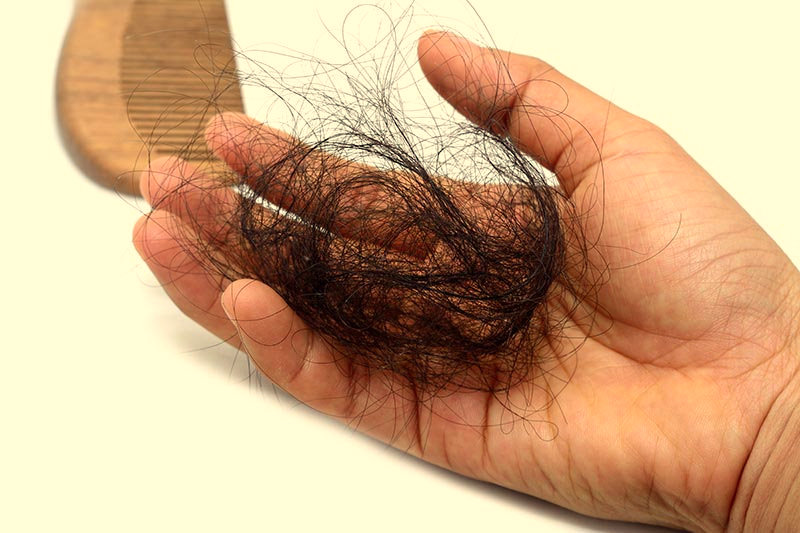 Telogen Effluvium And Excessive Hair Shedding
